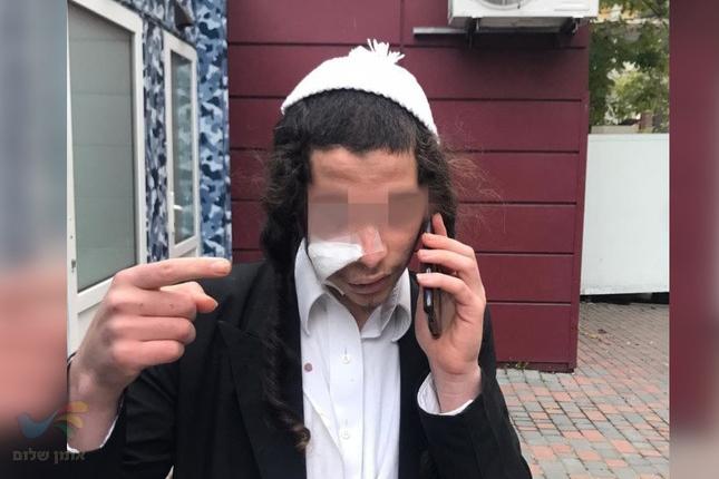 תוקף הנער החסיד ברסלב באומן נעצר, הודה במעשה ושיחזר אמש את התקיפה